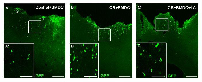 Implante de células madre de medula ósea procedente de ratones transgénicos para GFP en corteza cerebral tras lesión cerebral local, junto con una terapia farmacológica neuroprotectora.