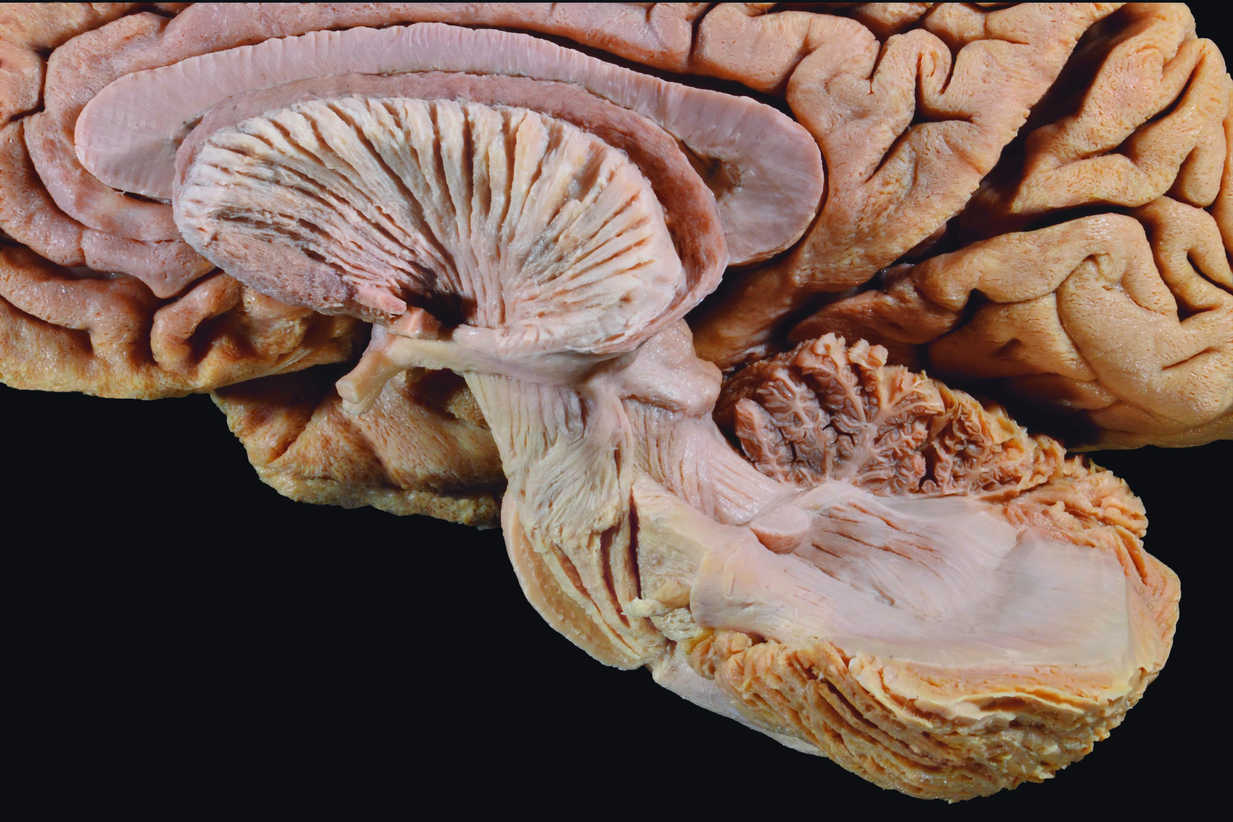 Los resultados de la investigación premiada permiten mejorar la interpretación de imágenes de resonancia magnética y tractografía cerebral, en la detección de lesiones en el interior del tronco-encéfalo y cerebelo.