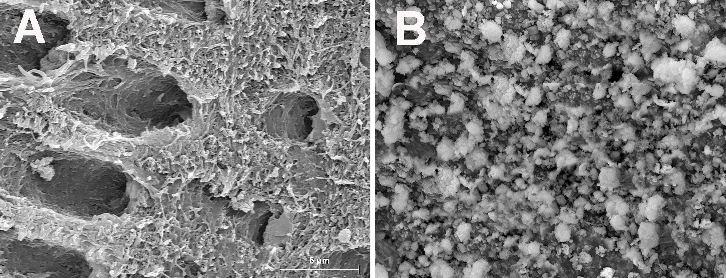 A: Dentina desmineralizada que presenta una cantidad de fibras de colágeno que, si no son preservadas y remineralizadas, pueden degradarse por la acción de las enzimas proteolíticas dentinales. B: Dentina tratada con resina con vidrio bioactivo enriquecida con flúor, que presenta precipitaciones minerales como signos de remineralización. FOTO: S. Sauro.