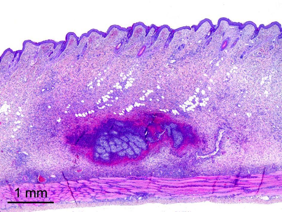 Aspecto microscópico a los 3 días tras la infección.