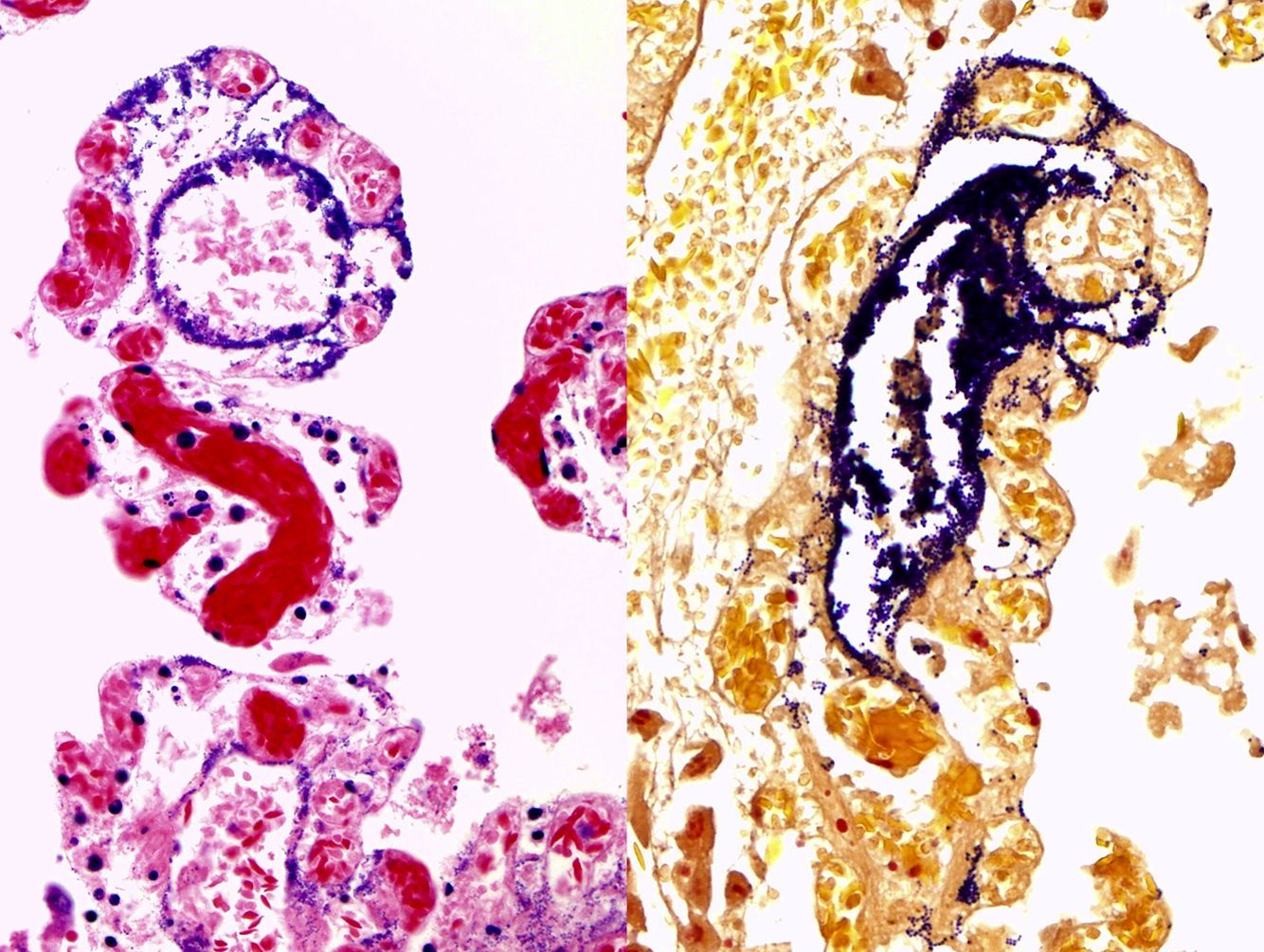 Imagen de bacterias Streptococcus equi de la subespecie analizada, en color morado, invadiendo el intestino de las alpacas a través de los vasos linfáticos.