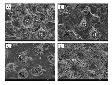 Resultados de la Microscopía Electrónica de Barrido (MEB). En la parte superior, imágenes a las 24 horas y a los 8 meses de la aplicación clásica de adhesivo y composite convencional. En la parte inferior, la aplicación de la técnica de adhesión simultánea, que presenta la dentina más protegida y mejor recubierta por la resina.